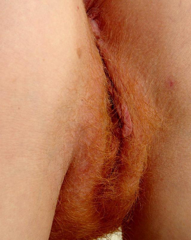 Рыжая курва с веснушками растянула свою киску
